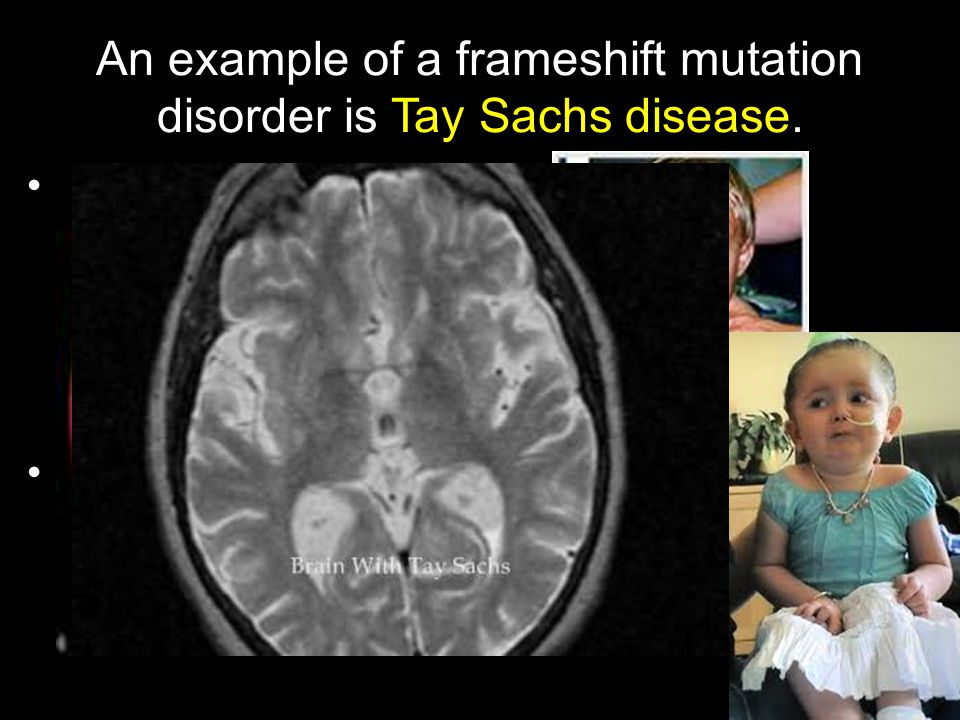 An example of a frameshift mutation disorder is Tay Sachs disease.