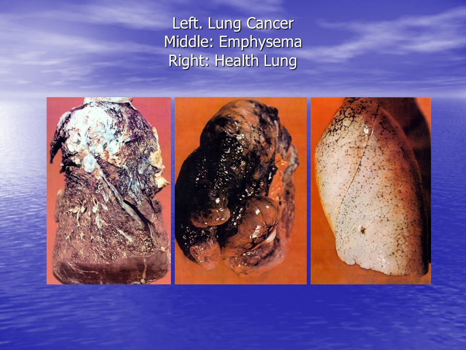 Left. Lung Cancer Middle: Emphysema Right: Health Lung