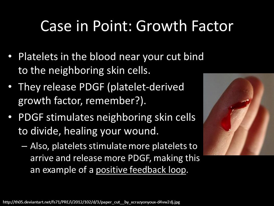 Case in Point: Growth Factor