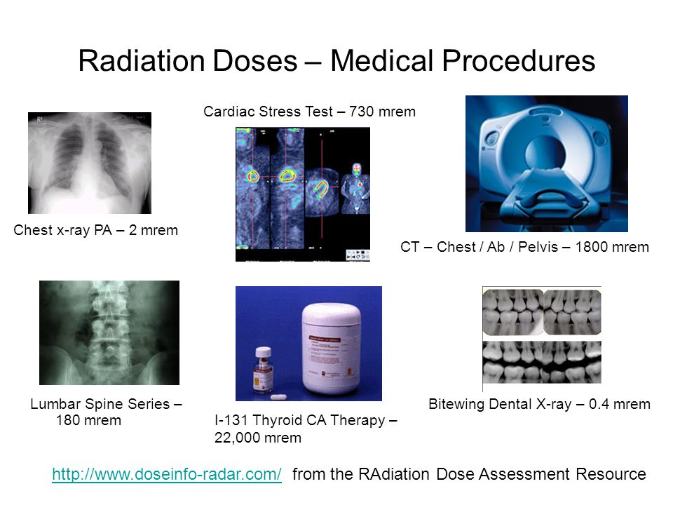 Radiation Doses – Medical Procedures