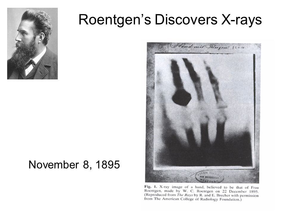 Roentgen's Discovers X-rays