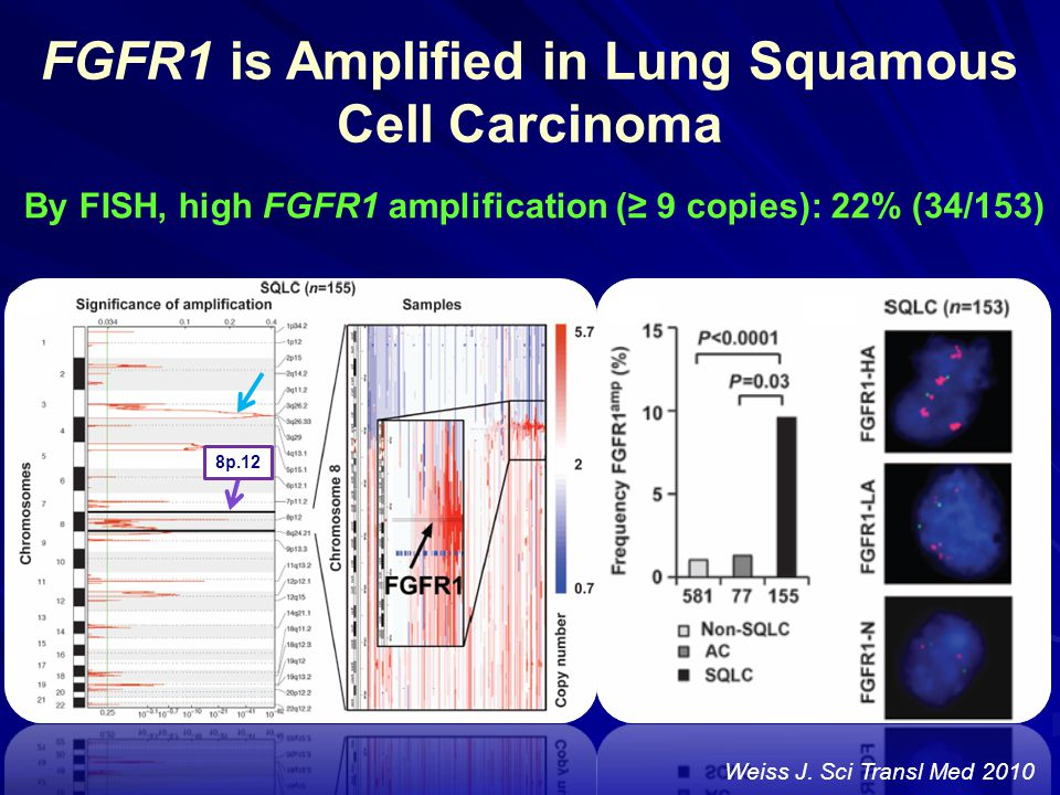 FGFR1 is Amplified in Lung Squamous Cell Carcinoma