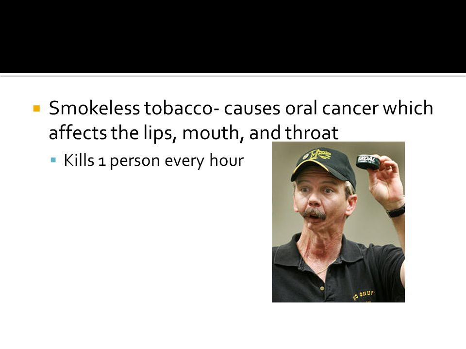 Smokeless tobacco- causes oral cancer which affects the lips, mouth, and throat