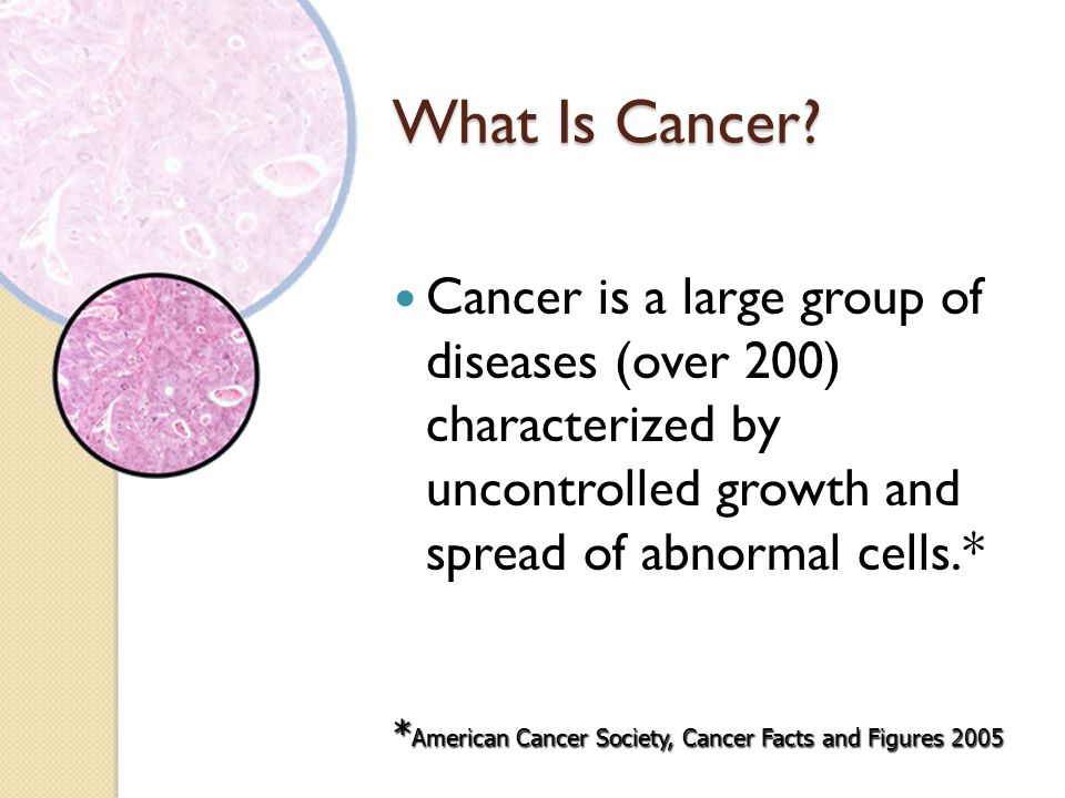 What Is Cancer Cancer is a large group of diseases (over 200) characterized by uncontrolled growth and spread of abnormal cells.*