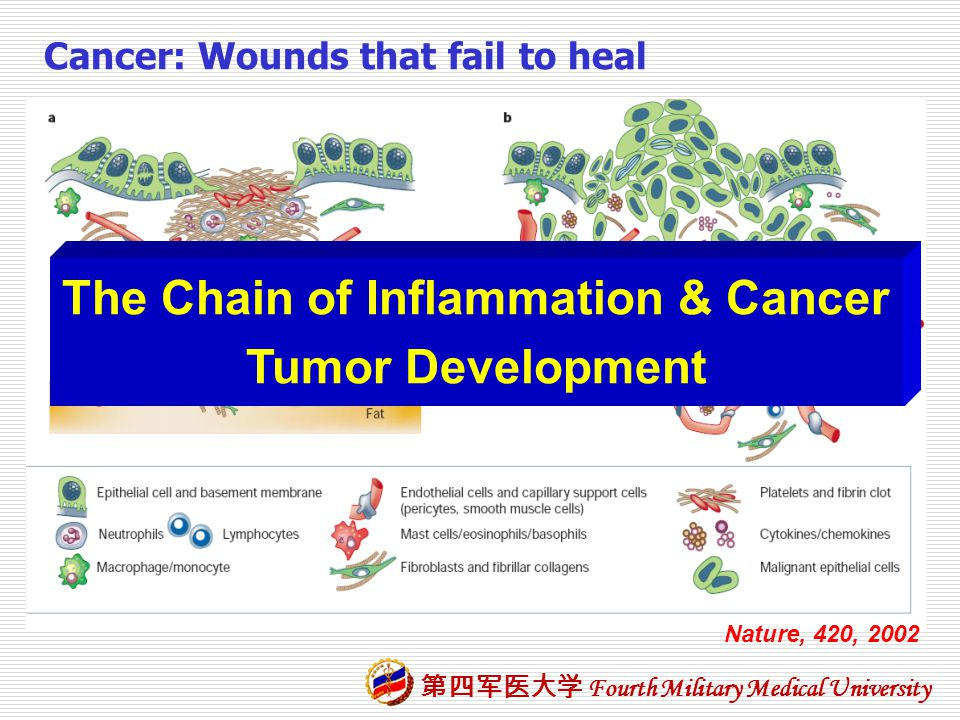 The Chain of Inflammation & Cancer
