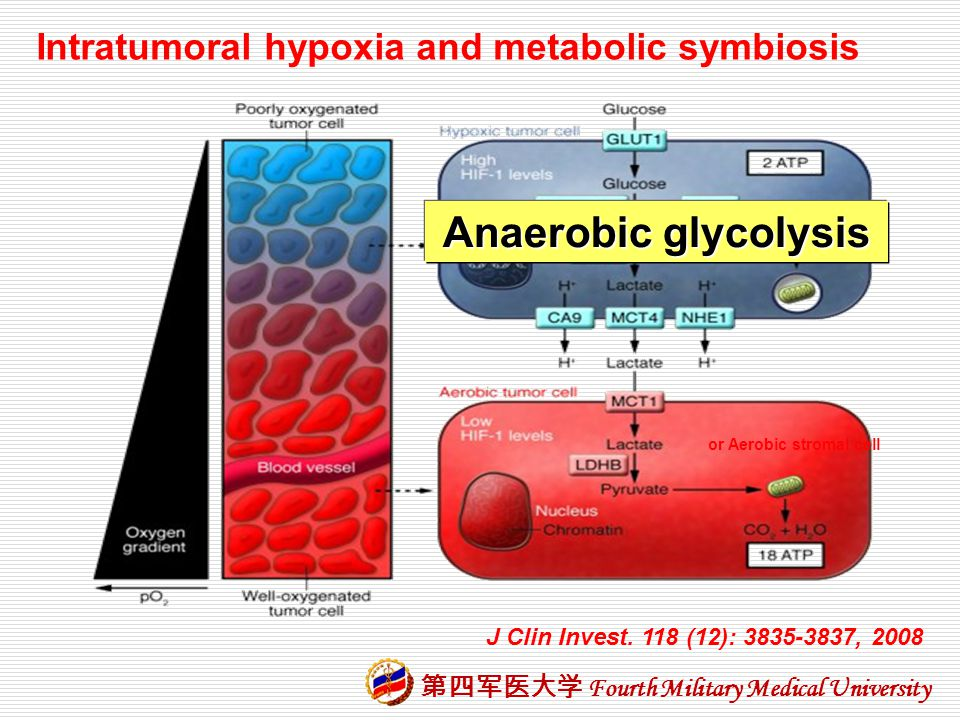Anaerobic glycolysis Intratumoral hypoxia and metabolic symbiosis