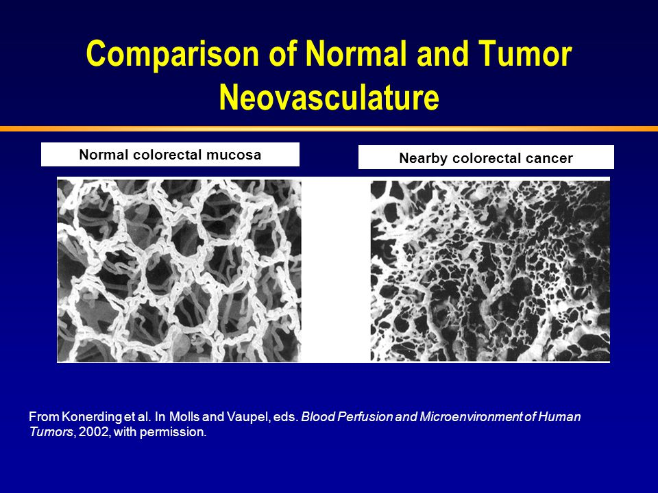 Comparison of Normal and Tumor Neovasculature
