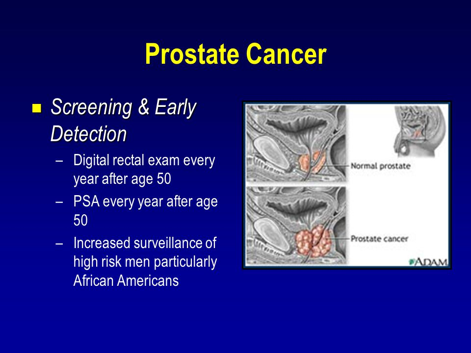 Prostate Cancer Screening & Early Detection