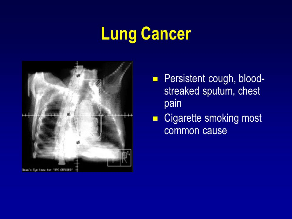 Lung Cancer Persistent cough, blood-streaked sputum, chest pain