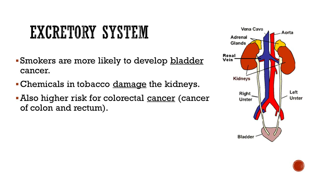 Excretory System Smokers are more likely to develop bladder cancer.