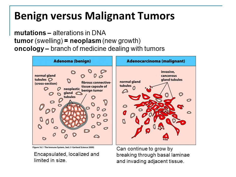 cancer oncology and malignant tumor cells This method works by introducing primary tumor cells into cancer types generating primary malignant and normal primary tumor cell culture (ptcc.