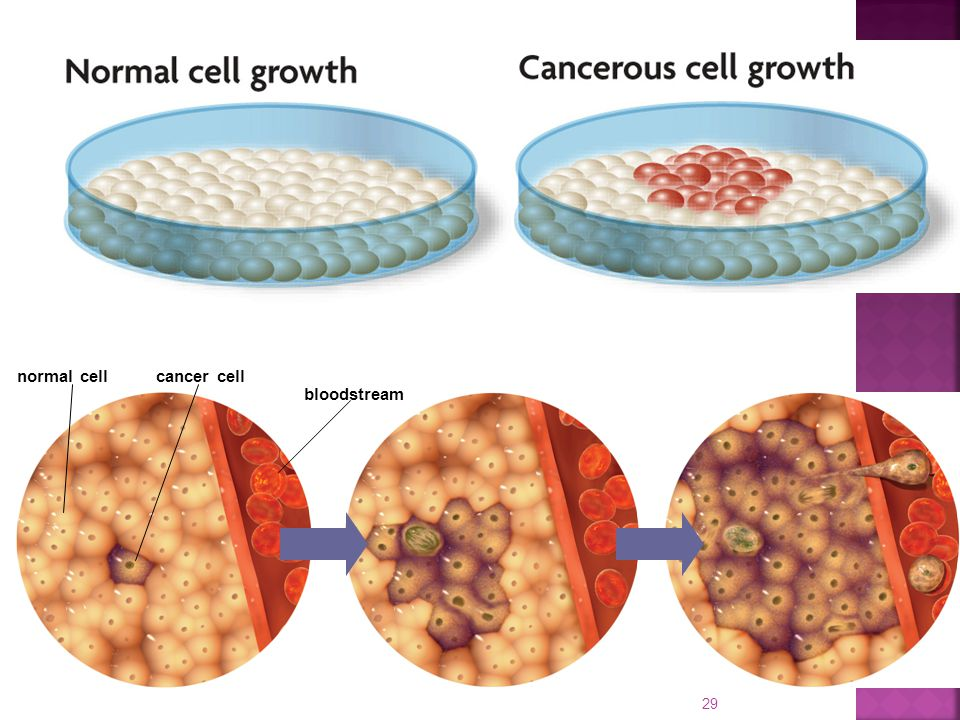 cancer cell bloodstream normal cell
