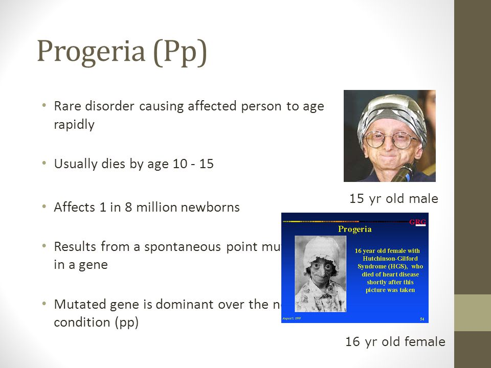 Progeria (Pp) Rare disorder causing affected person to age rapidly