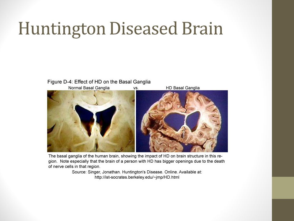 Huntington Diseased Brain