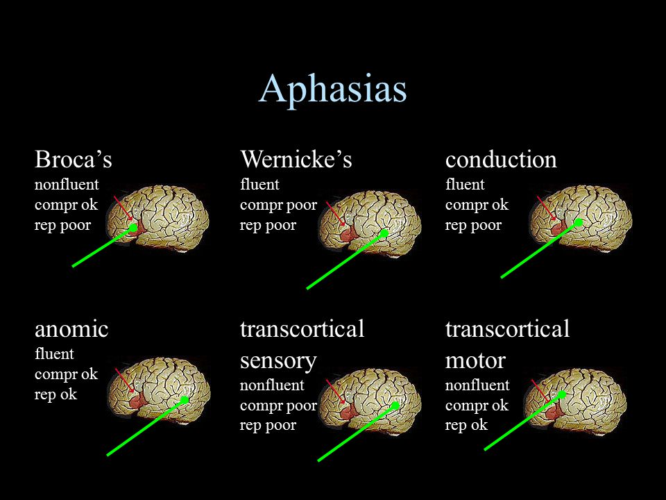 Aphasias Broca's nonfluent compr ok rep poor