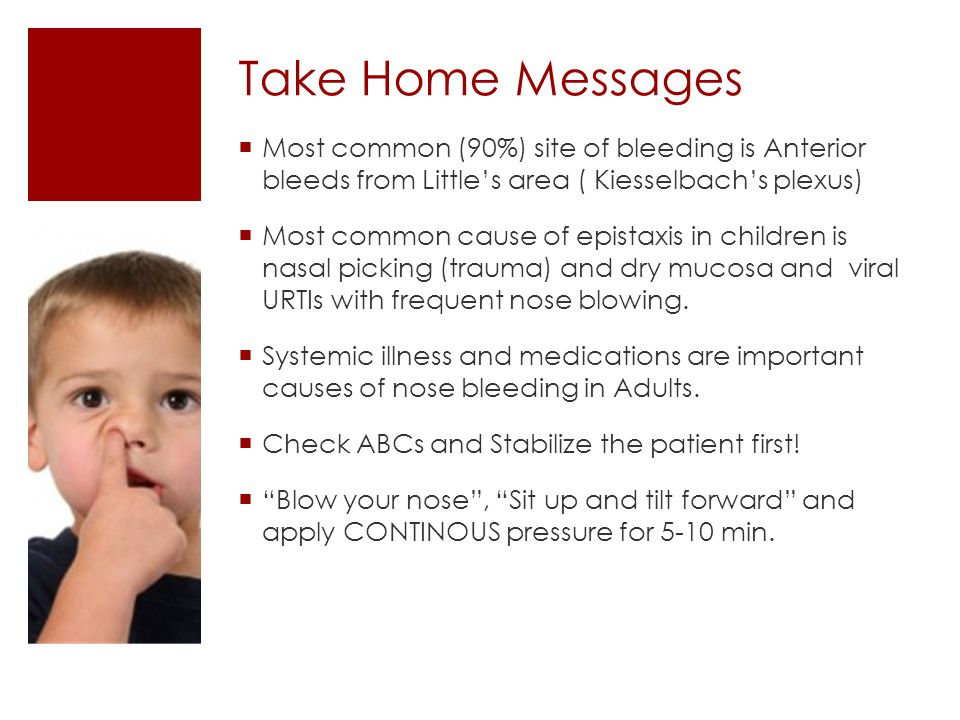 Take Home Messages Most common (90%) site of bleeding is Anterior bleeds from Little's area ( Kiesselbach's plexus)