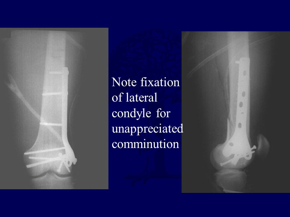 Note fixation of lateral condyle for unappreciated comminution