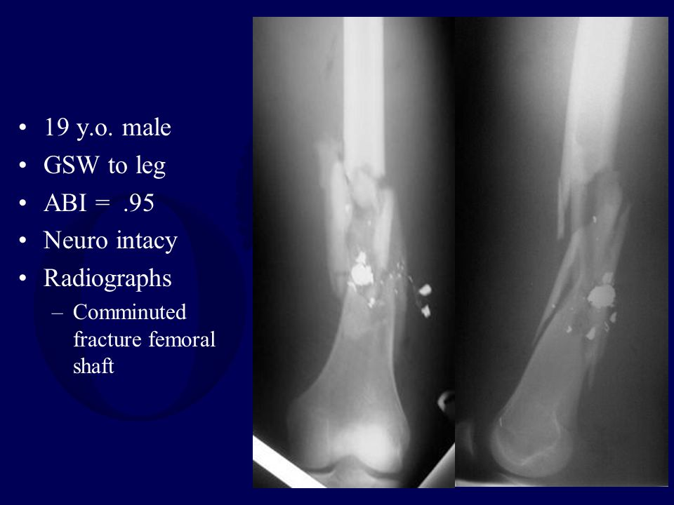 19 y.o. male GSW to leg ABI = .95 Neuro intacy Radiographs