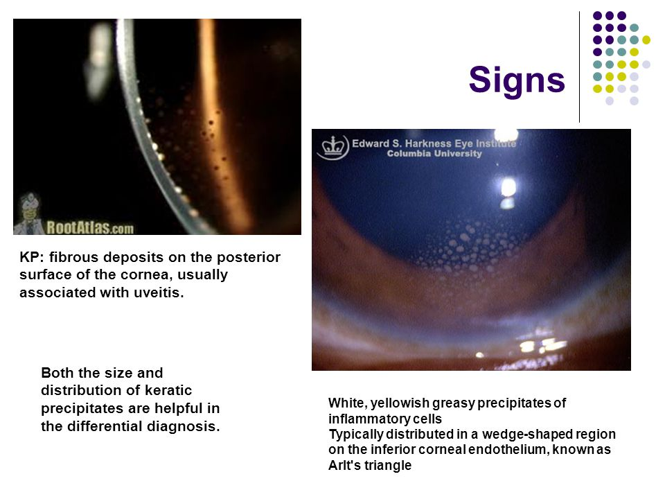 Signs KP: fibrous deposits on the posterior surface of the cornea, usually associated with uveitis.