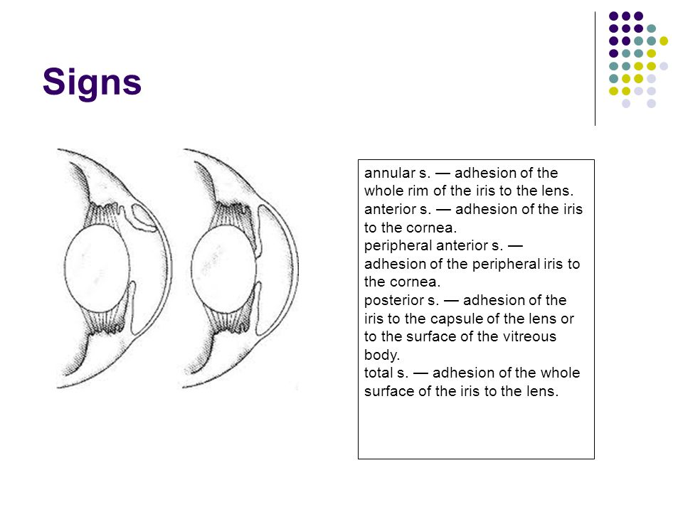 Signs annular s. — adhesion of the whole rim of the iris to the lens.