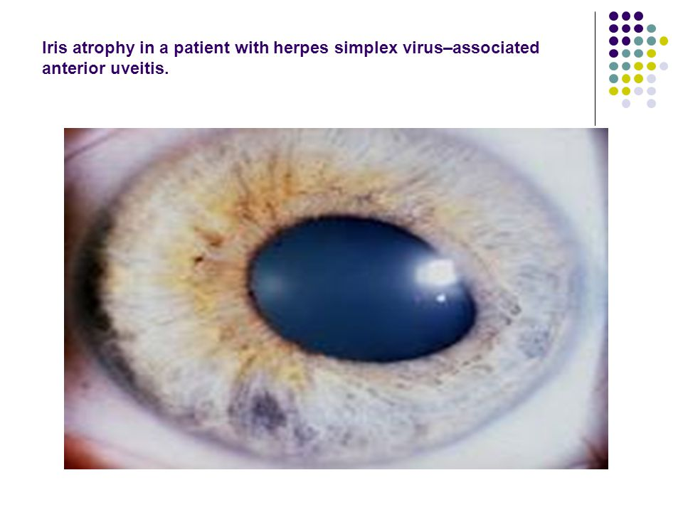 Iris atrophy in a patient with herpes simplex virus–associated anterior uveitis.