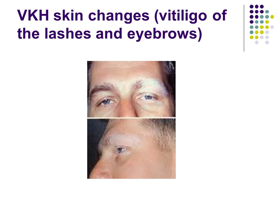 VKH skin changes (vitiligo of the lashes and eyebrows)