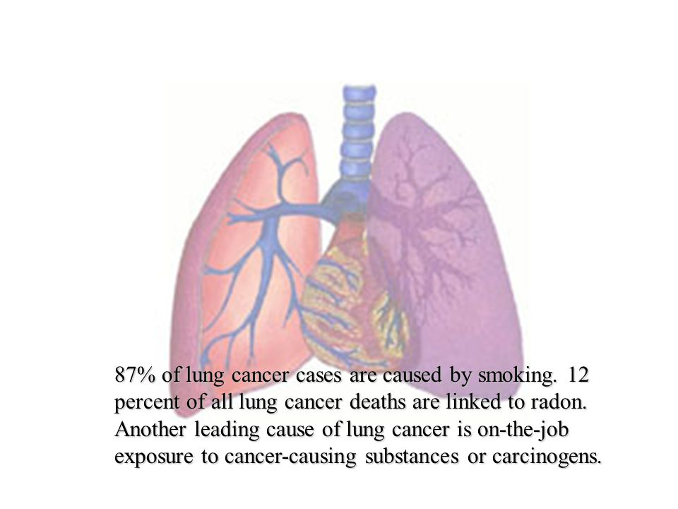 87% of lung cancer cases are caused by smoking