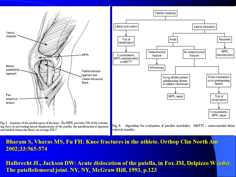 Bharam S, Vharas MS, Fu FH: Knee fractures in the athlete