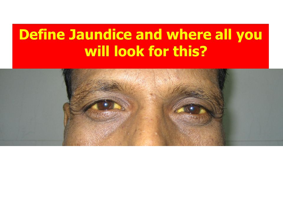 Define Jaundice and where all you will look for this