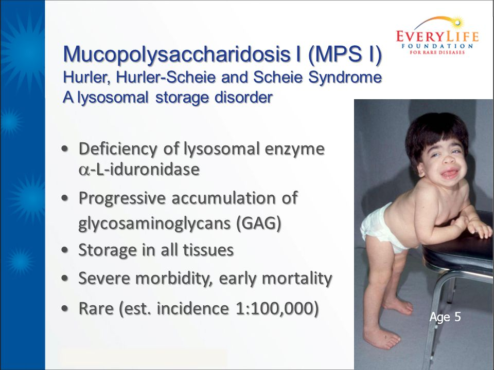 Mucopolysaccharidosis I (MPS I) Hurler, Hurler-Scheie and Scheie Syndrome A lysosomal storage disorder