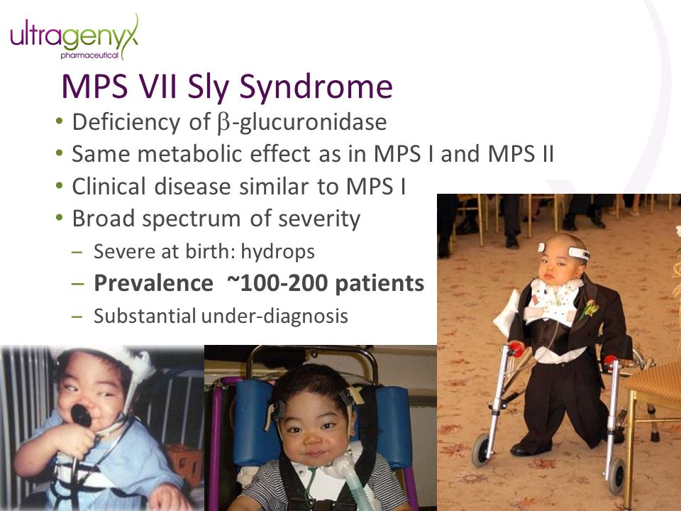 MPS VII Sly Syndrome Deficiency of b-glucuronidase