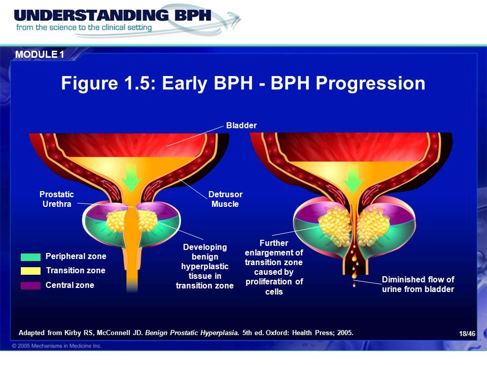 Figure 1.5: Early BPH - BPH Progression
