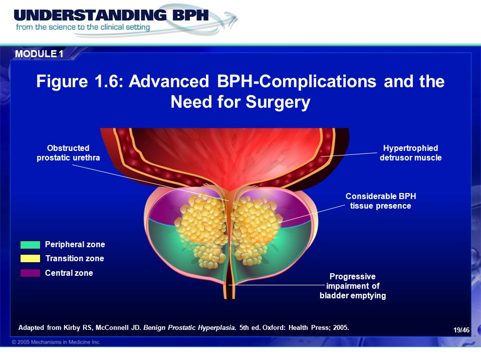 Figure 1.6: Advanced BPH-Complications and the Need for Surgery