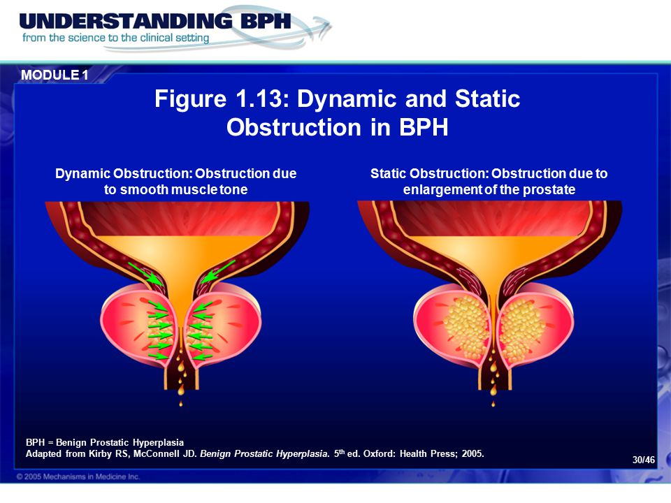 Figure 1.13: Dynamic and Static Obstruction in BPH