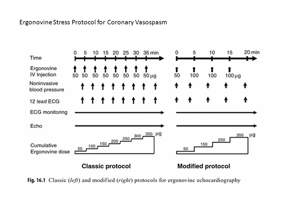 Ergonovine Stress Protocol for Coronary Vasospasm
