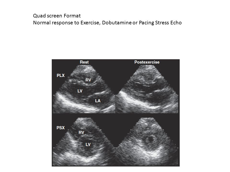 Quad screen Format Normal response to Exercise, Dobutamine or Pacing Stress Echo