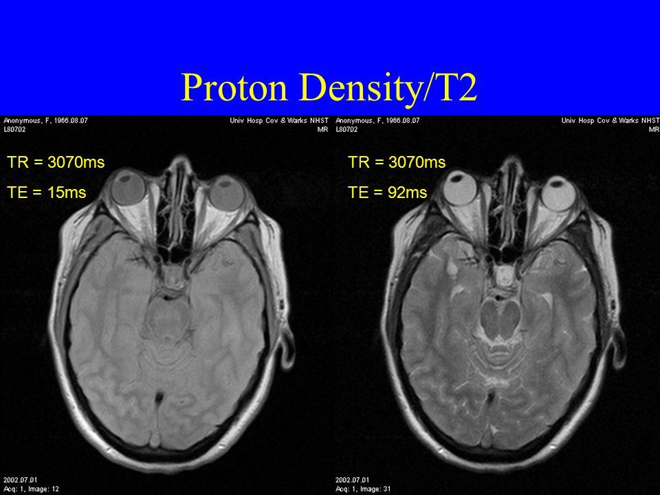Proton Density/T2 TR = 3070ms TE = 15ms TR = 3070ms TE = 92ms