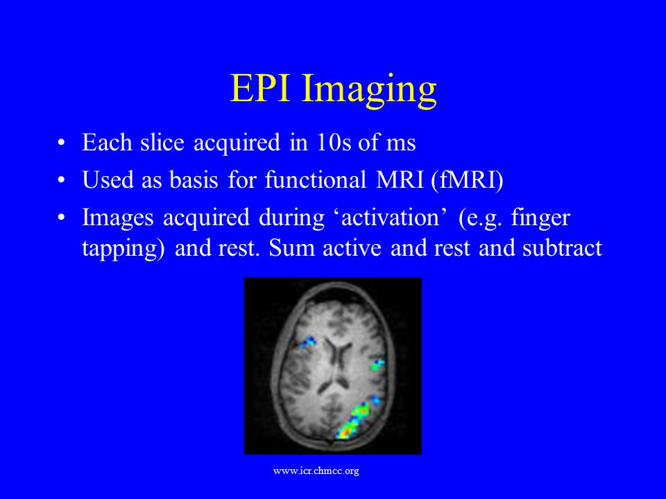 EPI Imaging Each slice acquired in 10s of ms