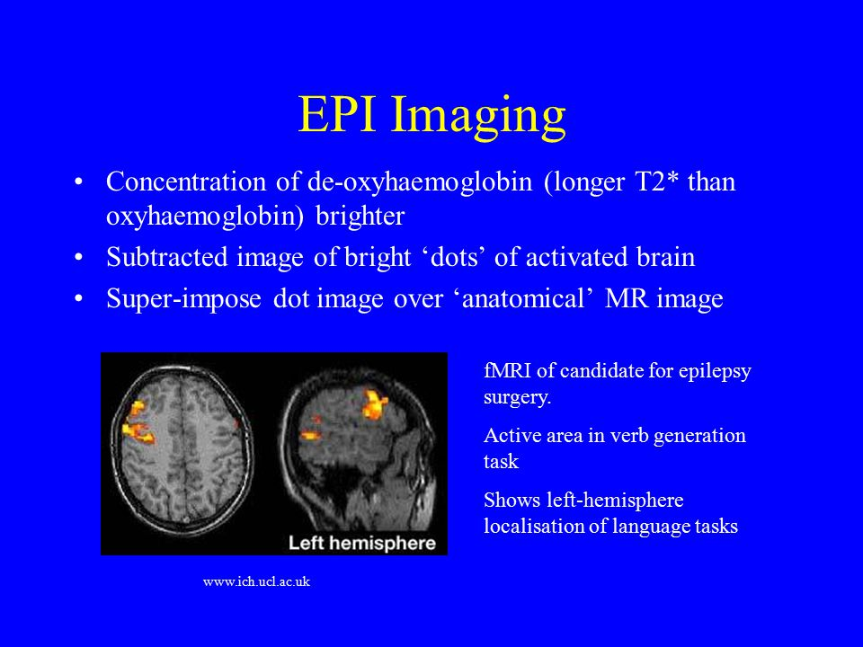 EPI Imaging Concentration of de-oxyhaemoglobin (longer T2* than oxyhaemoglobin) brighter. Subtracted image of bright 'dots' of activated brain.