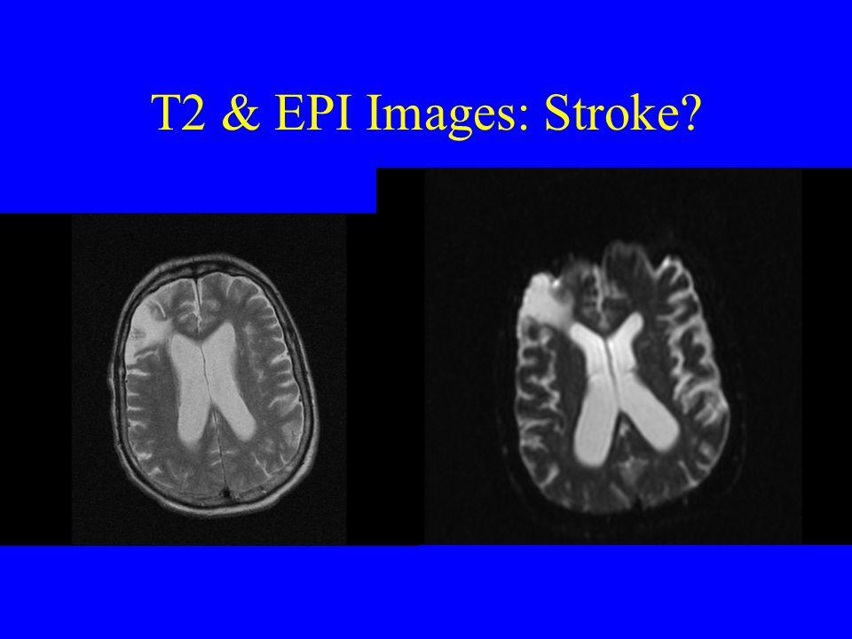 T2 & EPI Images: Stroke