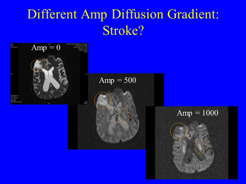 Different Amp Diffusion Gradient: Stroke