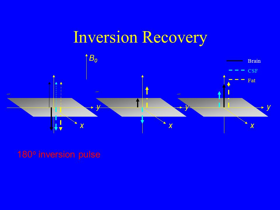 Inversion Recovery B0 Brain CSF Fat y y y x x x 180o inversion pulse