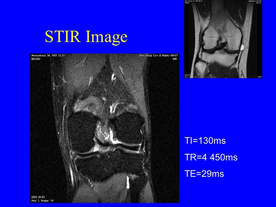 STIR Image TI=130ms TR=4 450ms TE=29ms
