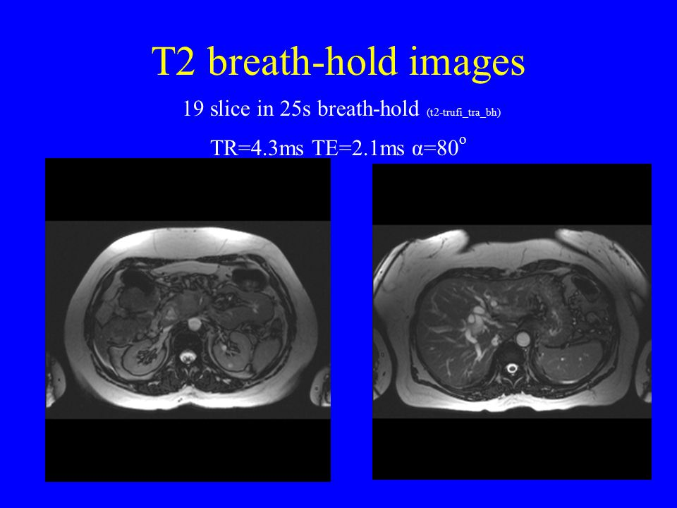 T2 breath-hold images 19 slice in 25s breath-hold (t2-trufi_tra_bh)