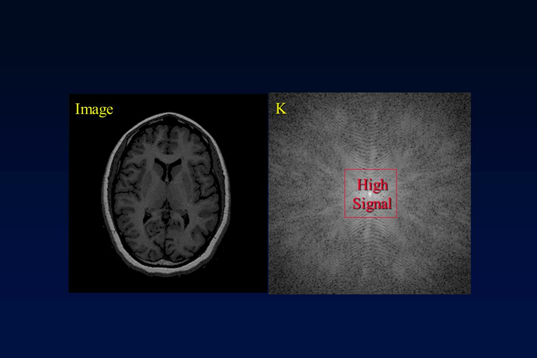 Image K High Signal