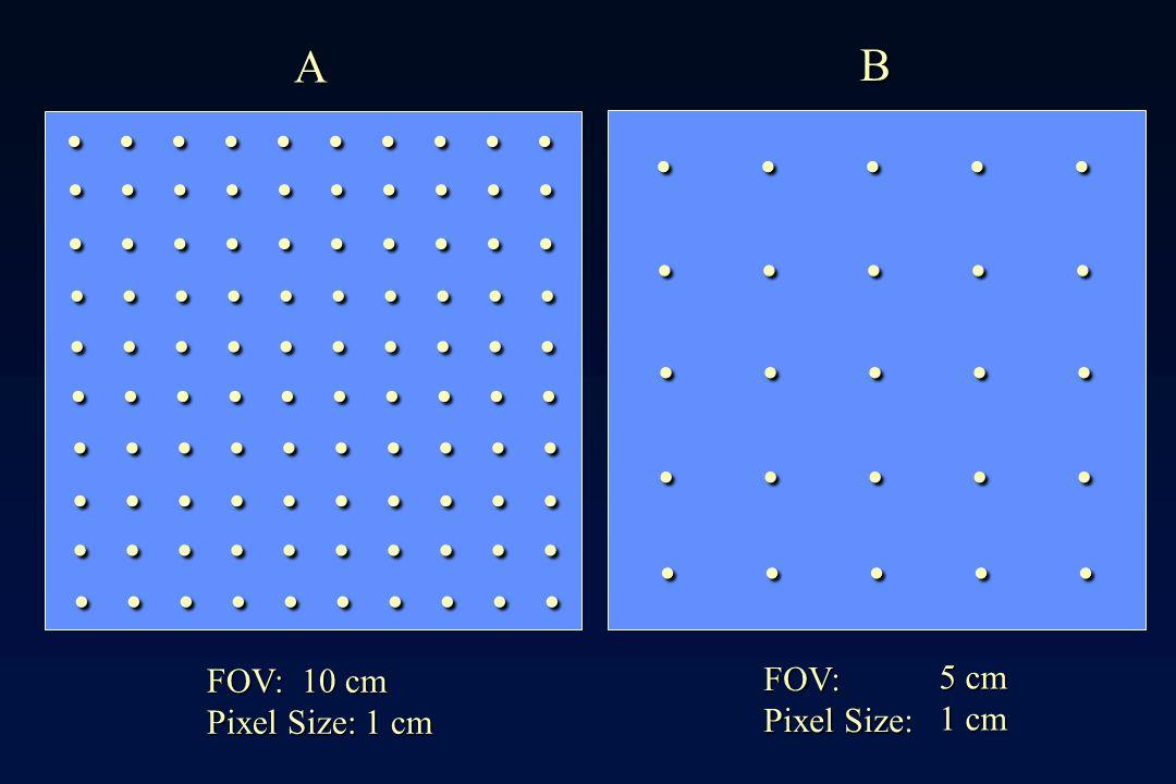 A B . . . . . . . . . . . . . . . FOV: 10 cm Pixel Size: 1 cm FOV: Pixel Size: 5 cm 1 cm