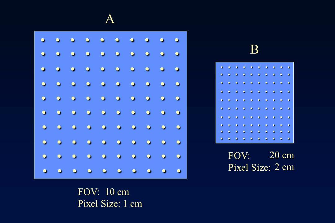 A . B. . FOV: Pixel Size: 20 cm. 2 cm. FOV: 10 cm.