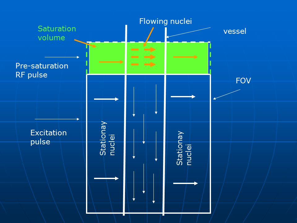 Flowing nuclei Saturation volume. vessel. Pre-saturation RF pulse. FOV. Excitation pulse. Stationay nuclei.