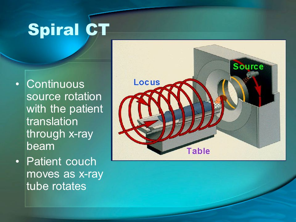 Spiral CT Continuous source rotation with the patient translation through x-ray beam.