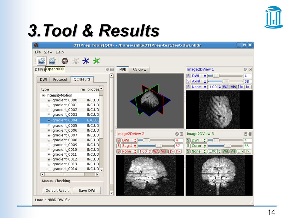 3.Tool & Results p < 0.05